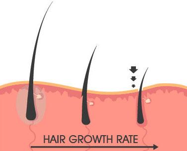 Борода, польза бороды, борода это круто, борода помогает от вросших волос life4beard.ru