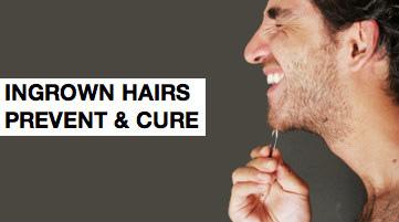 вросшиеся вросшие волосы воспаление угри как избавиться от вросших волос борода усы отрастить бороду не могу