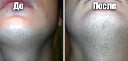 термобелье миноксидил для волос отзывы после отмены препарата нас сможете
